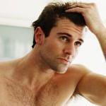 Лечение на косопад с андрогени