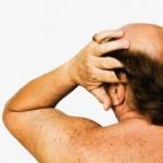 Оплешивяването издава риск от сърдечни проблеми