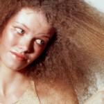 Грижа за косата при жени с косопад