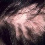 Какво e цикатрициалната алопеция и може ли да се лекува