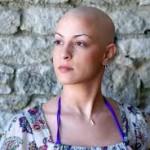 Разработват нова методика за химиотерапия без косопад