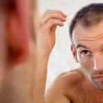 Рискови фактори за поява на косопад