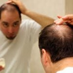 Лечение на косопад при мъжете в домашни условия