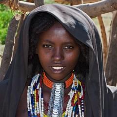 в африка не страдат от косопад