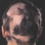 Кожни заболявания на скалпа