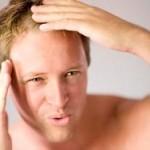 Как да се справим с мъжкото оплешивяване