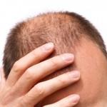 Как да се борим срещу косопада и оплешивяването