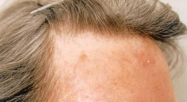 fibrozirashta-alopeciq
