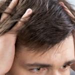 Видове косопад от стрес