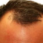 Как да стимулираме растежа на косата по слепоочието